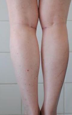 Центр пластической хирургии - Коррекция формы голени